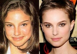 before and after plastic surgery (14)[1]